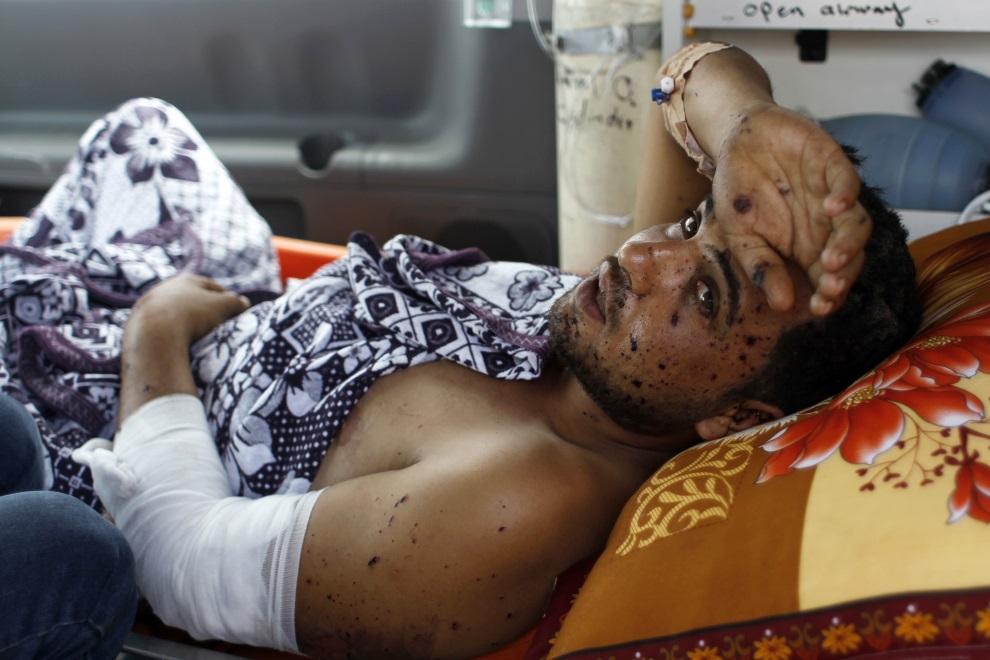 13.AUTONOMIA PALESTYŃSKA, Rafah, 10 lipca 2014: Palestyńczyk ranny w wyniku izraelskiego nalotu. AFP PHOTO/ SAID KHATIB