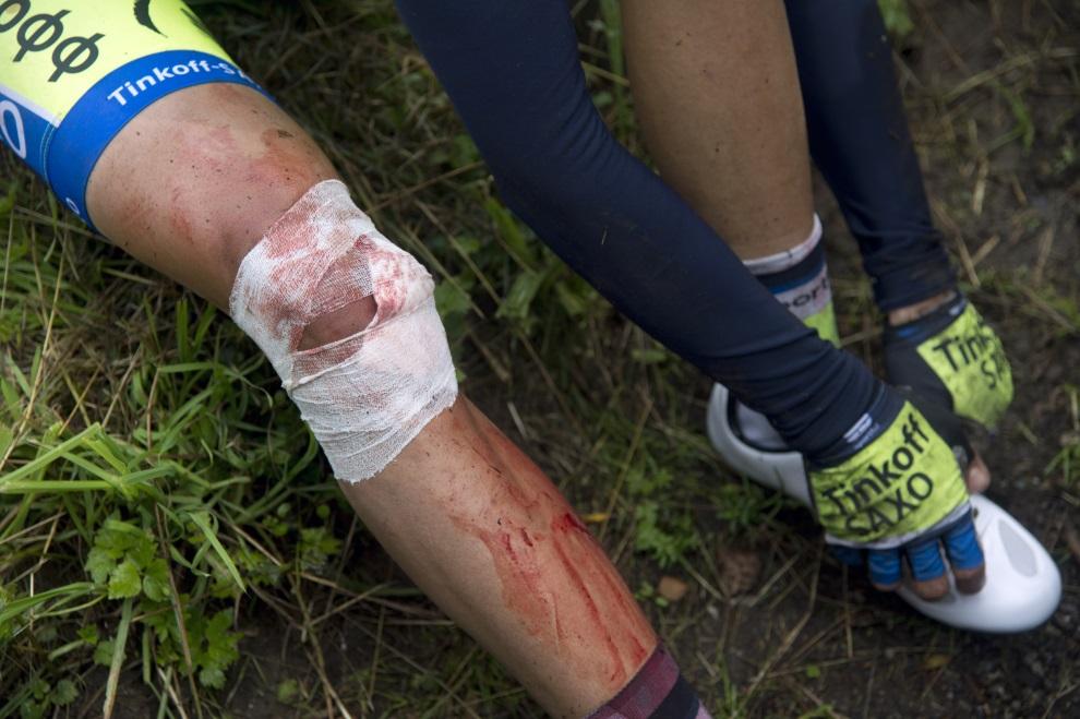 21.FRANCJA, Plancher-les-Mines, 14 lipca 2014: Kontuzjowany Alberto Contador. AFP PHOTO / LIONEL BONAVENTURE