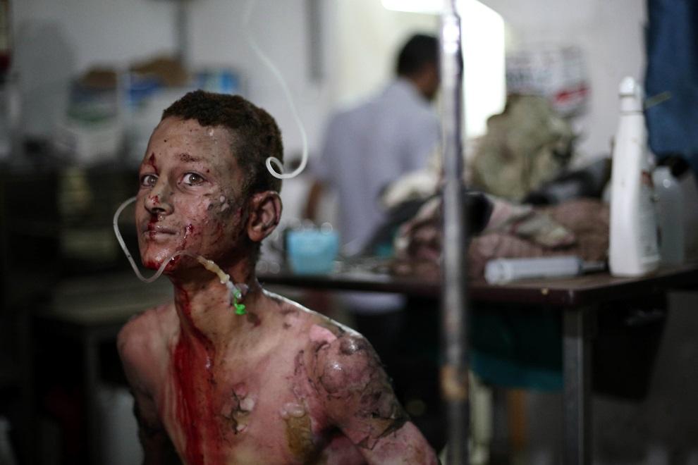 6.SYRIA, Douma, 28 czerwca 2014: Chłopak ranny w wyniku eksplozji samochodu-pułapki. AFP PHOTO / ABD DOUMANY