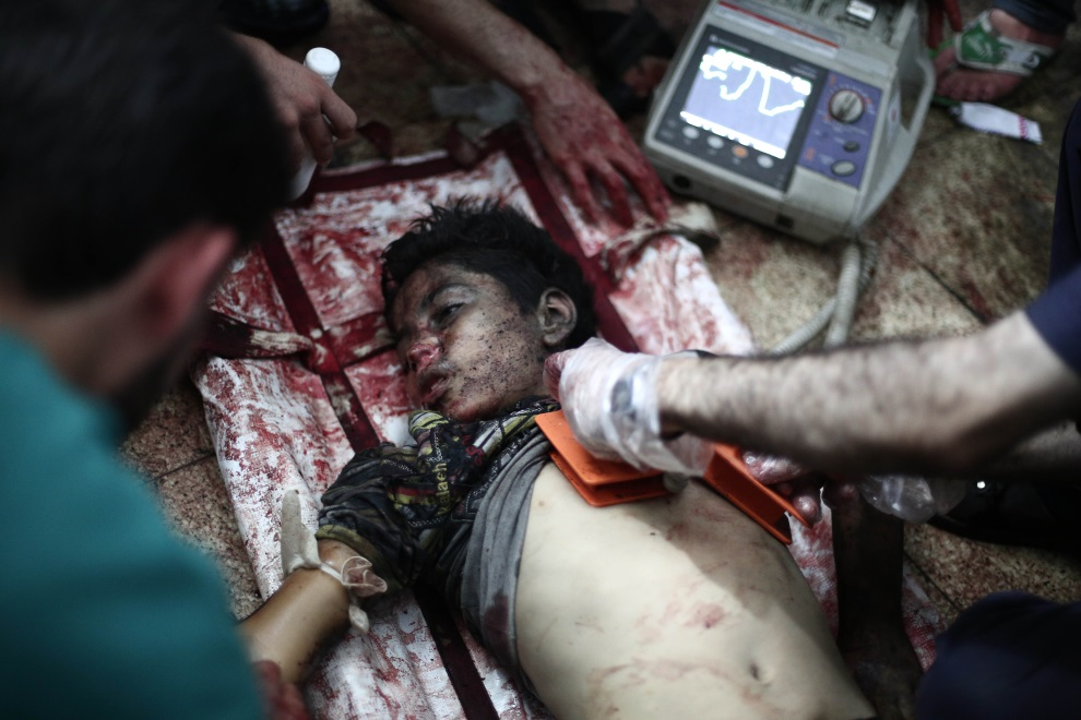 11.SYRIA, Douma, 30 lipca 2014: Reanimacja chłopca rannego podczas nalotu sił rządowych. AFP PHOTO / ABD DOUMANY
