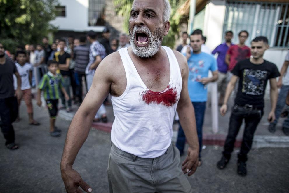 20.STREFA GAZY, 28 lipca 2014: Palestyńczyk przed wejściem do szpitala. AFP PHOTO/MARCO LONGARI