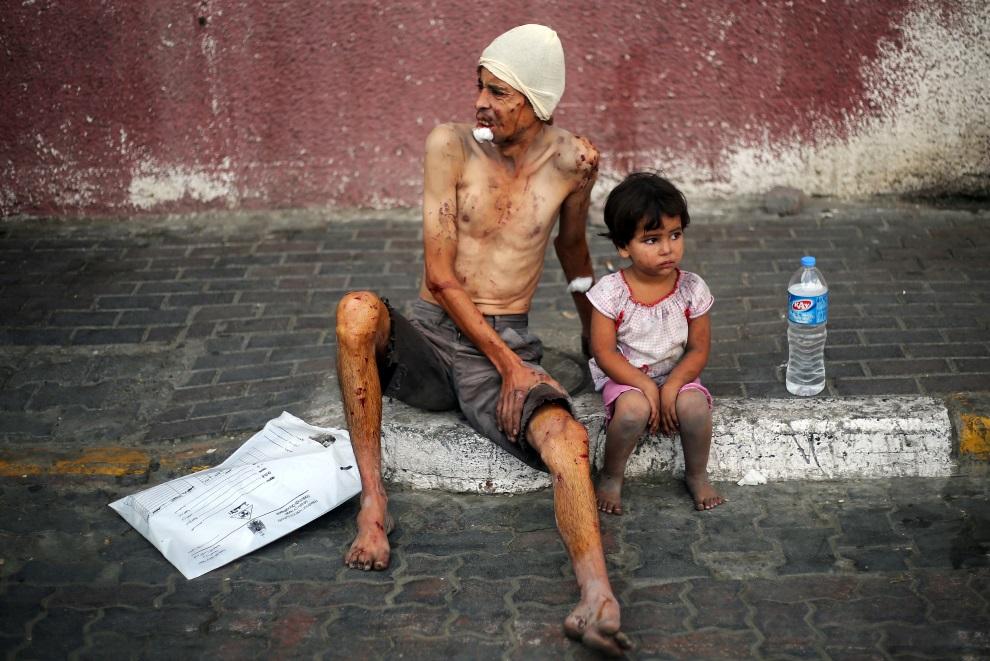 26.0 STREFA GAZY, 29 lipca 2014: Palestyńczycy ranni w wyniku izraelskiego nalotu. AFP PHOTO/ BILAL TELAWI